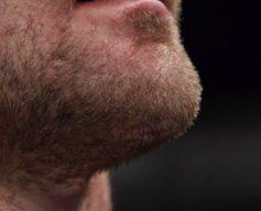 Askren's chin